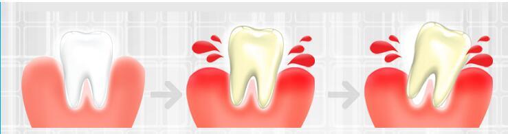 哪些人比较容易牙龈出血?
